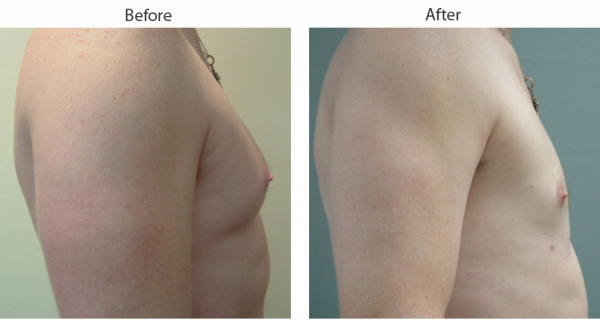breast reduction before and after pictures  613224